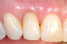 Final crown of implant (Restoration by Dr. Jack Luker)